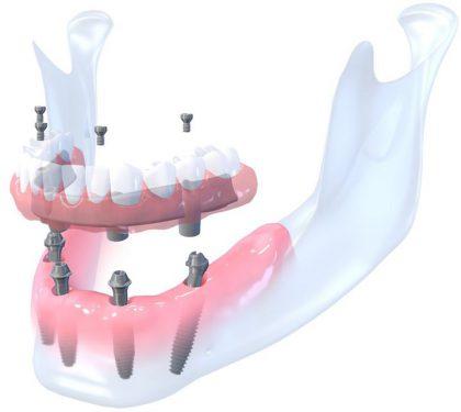 Pacientės istorija: kaip jaučiasi dantų netekę žmonės?