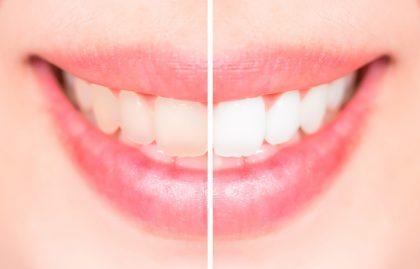 Kaip nubalinti dantis?